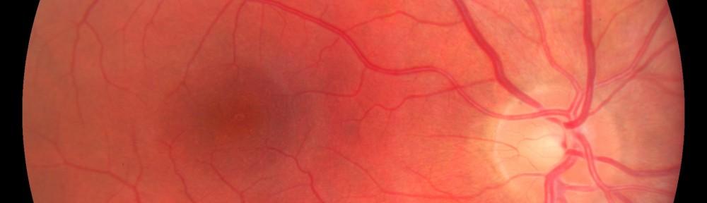 retina1